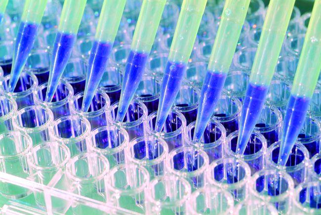Genfit teste des biomarqueurs pour mieux identifier la maladie.
